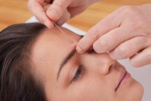 Akupunktur - Traditionellen Chinesischen Medizin - TCM